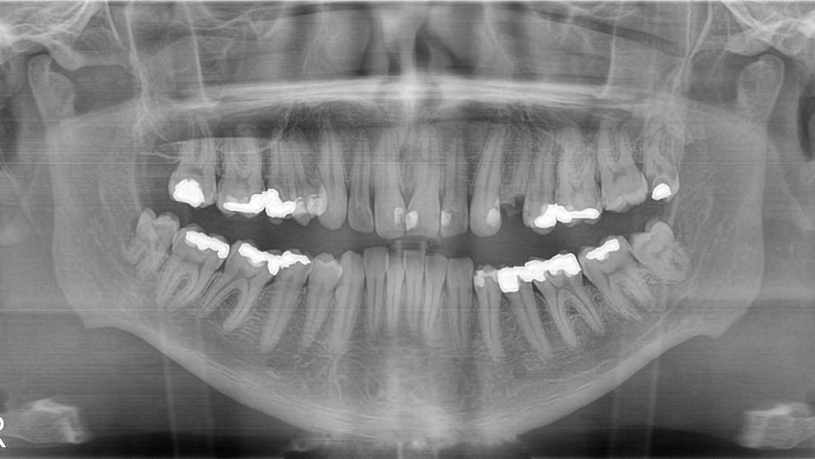 Teeth-Regenerate-Feature-img